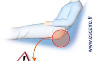 Prévention et traitement des escarres
