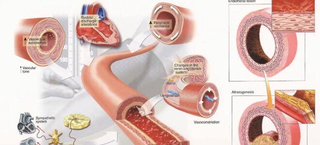 Maladie hypertensive (Hypertension artérielle essentielle)