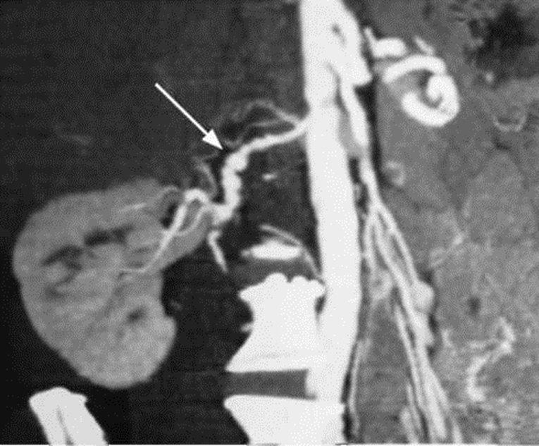 CT scan avec opacification. Une dysplasie fibromusculaire de l'artère rénale (flèche)